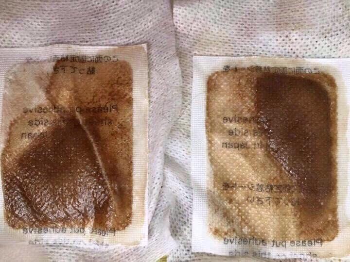 Miếng dán thải độc tố Nhật Bản To-Plan
